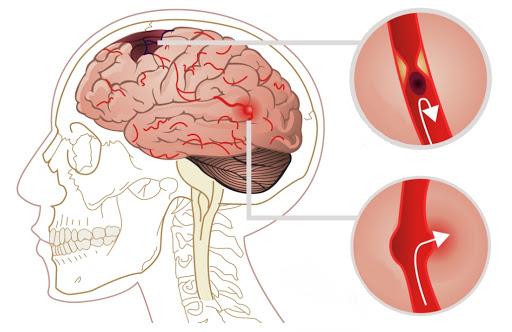 крововилив в мозок